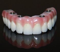 by Golpa dental implants can give you a permanent, fully restored smile in just 24 hours. The Dental Implant Solution is the one true way to restore all your teeth in one day. Dental Implant Surgery, Implant Dentistry, Teeth Implants, Cosmetic Dentistry, Dental Facts, Dental Bridge, Dental Crowns, Teeth Care, Dental Care