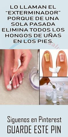 Home and Furniture: House Spring Cleaning Challenge Dead Toenail, Toenail Removal, Free To Use Images, Manicure Y Pedicure, Health And Beauty Tips, Natural Medicine, Toe Nails, Health Remedies, Diy Painting