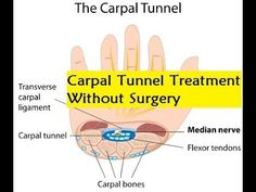 Carpal Tunnel Treatment Without Surgery