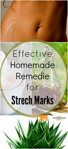 Stretch marks are associated with weight loss, weight gain and pregnancy. A lot of people have this problem. The good news is that we are not totally powerless against stretch marks.