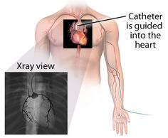 """Offered at GPRMC is Cardiac catheterization, which is commonly called a """"cardiac cath"""", is a procedure used to evaluate multiple aspects of the hearts structure and function including the heart's blood vessels (looking for blockages), the pumping function, and valves."""