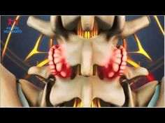 Lumbar Osteophytes Bone Spurs  #health #fitness #fit #InstaTags4Likes #fitnessmodel #fitnessaddict #fitspo #workout @appslejandro #bodybuilding #cardio #gym #train #training #photooftheday #health #healthy #instahealth #healthychoices #active #strong #motivation #instagood #determination #lifestyle #diet #getfit #cleaneating #eatclean #exercise