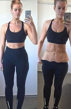 10 Best Lipos Images Plastic Surgery Cher Plastic Surgery