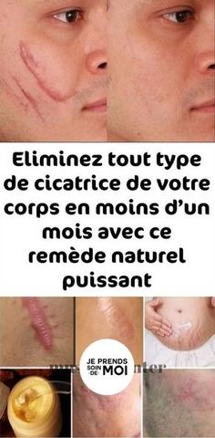 Eliminez tout type de cicatrice de votre corps en moins d'un mois avec ce remède naturel puissant Eliminate any type of scar from your body in less than a month with this powerful natural remedy Permanent Facial Hair Removal, Remove Unwanted Facial Hair, Unwanted Hair, Chin Hair Removal, Hair Removal Methods, Skin Tag Removal, Electrolysis Hair Removal, Hair Removal Machine, How To Grow Eyebrows