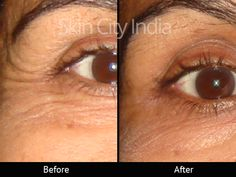 Skin City India - Botox
