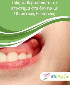 Dental, Health Fitness, Face, Angel, Cook, Baking Soda, Clove Oil, Clean Teeth, Peppermint Oil Hair