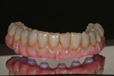 Lower jaw Prettau® structure on 5 implants by Maurizio Ceccarelli, Firenze (Italy)