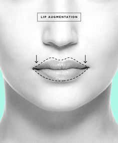 Click on the photo to learn more about Lip Augmentations aka Lip Enhancements!