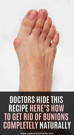 Doctors Hide This Recipe Here rsquo s How to Get Rid of Bunions Completely Naturally Natural Cough Remedies, Natural Health Remedies, Natural Cures, Herbal Remedies, Get Rid Of Bunions, Healthy Juice Drinks, Health Matters, How To Get Rid