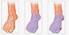 Studené končetiny a špatnou cirkulaci krve není radno podceňovat, jinak mohou vzniknout vážné komplikace, jako jsou krevní sraženiny či diabetická noha.