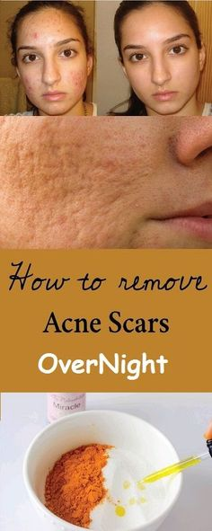 Acne Remedies How to remove acne scars with natural remedies Scar Remedies, Natural Acne Remedies, Home Remedies, Natural Cures, Natural Skin, Holistic Remedies, Homeopathic Remedies, How To Remove Pimples, How To Get Rid Of Acne