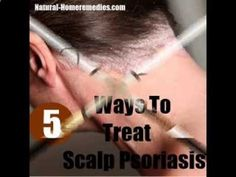 Psoriasis Revolution - 5 Best And Effective Ways For Scalp Psoriasis Treatments | Natural Home Remedies  Supplements - REAL PEOPLE. REAL RESULTS 160,000+ Psoriasis Free Customers