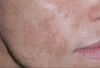 Melasma also known as chloasma faciei or 'the mask of pregnancy', the condition is characterised by patches of skin discolouration.Find out more about the symptoms, causes and treatment of the skin condition melasma. Face Skin, Face And Body, Beauty Skin, Health And Beauty, Beauty Box, Beauty Tips, Dark Patches On Skin, Home Remedies For Face, Remover Manchas