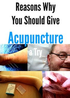 Reasons Why You Should Give Acupuncture a Try