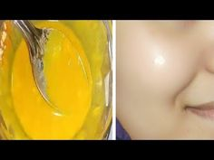 If you have dull looking skin that has lost natural shine, try this remedy. This pack will make your shinier gain, will remove dead skin layer from your skin and will also shrink size of your skin pores, so that your skin look younger again For this beauty treatment you will need Milk – 3 …