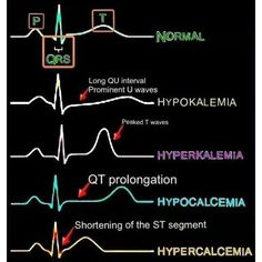 PQRST waves: ✅ Hypokalemia - long QU interval & prominent U waves ✅ Hyperkalemia - peaked T waves ✅ Hypocalcemia - QT prolongation ✅ Hypercalcemia - shortening of the ST segment