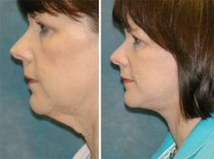 Double Chin Obliteration With Facial Yoga Exercises: Sharpen Up Your Jawline For A Leaner, Dapper Look