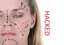 Cosmetic Surgery Clinic Hit by Hackers