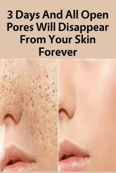 Tips for Getting Rid of Open Pores. How To Close Open Pores on Face Permanently? How To Remove Small Pores From Face Naturally? Getting Rid of Open Pores.