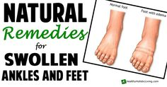 Natural Remedies For Swollen Ankles and Feet - Healthy Holistic Living