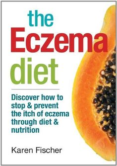 Natural Home Remedies The Eczema Diet: Discover How to Stop and Prevent The Itch of Eczema Through Diet and Nutrition - Do you suffer from eczema? Know what foods to avoid to prevent flare-ups and try these natural remedies to help clear up your eczema. Psoriasis Diet, Psoriasis Remedies, Snoring Remedies, Eczema Scalp, Eczema Home Remedies, Health Remedies, Eczema Shampoo, Herbal Remedies, Diet And Nutrition