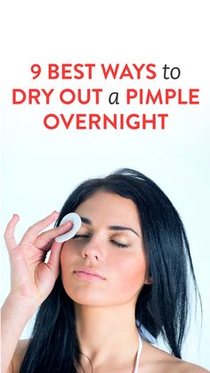 9 Best Ways to Dry Out a Pimple Overnight