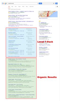 The basics of local search engine optimization. Discover what local SEO is now, why it's important, who benefits from it (and who do not). Dentist Reviews, Best Seo Company, Local Seo, Search Engine Optimization, Arches, Get Started, Dental, Toronto, Digital Marketing