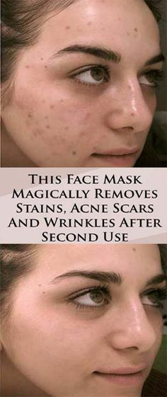 This is an amazing face mask that will help you eliminate the stains, the wrinkles and the acne scars. Frequently, the healing procedures