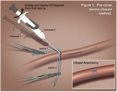 Pre-close technique. From Grise M, Badawi RA. Access and closure techniques with the Impella left ventricular assist device. Cath Lab Digest Apr 2012;20(4):1-15.