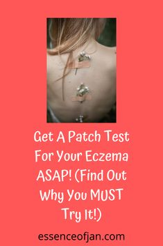 Getting a patch test for your eczema might be one of the best decisions you could ever make to try to improve your skin condition. Allergic Reaction On Skin, Severe Eczema, Why Try, Allergy Testing, I Feel Free, Tanning Bed, Allergies, Cool Words, Improve Yourself