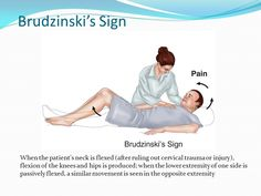 Image result for brudzinski's sign