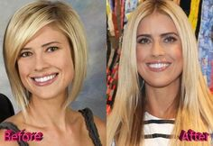 Christina El Moussa Plastic Surgery Christina El Moussa Plastic Surgery Still Beautiful Christina El Moussa Plastic Surgery Rumors Before And After Christina El Moussa Plastic Surgery Fact Or Not? Plastic Surgery Facts, Christina El Moussa, Beautiful Christina, Scaly Skin, Moisturizer With Spf, Best Face Products, Face Skin, Skin Treatments, Skin Makeup
