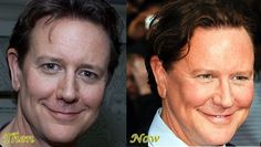 Judge Reinhold Plastic surgery before and after Source by jillinanderson New Face, Face And Body, Plastic Surgery Pictures, Christine Lahti, Facelift Before And After, Celebrity Plastic Surgery, Celebrities Before And After, Botox Injections, Beauty Hacks