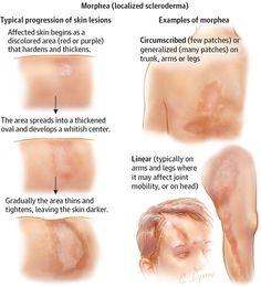 Morphea (Localized Scleroderma). JAMA Dermatol. 2013;149(9):1124. doi:10.1001/jamadermatol.2013.5079.