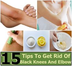 15 Effective Tips To Get Rid Of Black Knees And Elbow   DIY Home Things