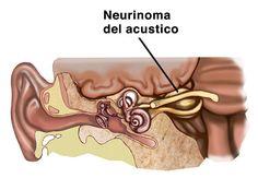 neurinoma del acustico - Buscar con Google