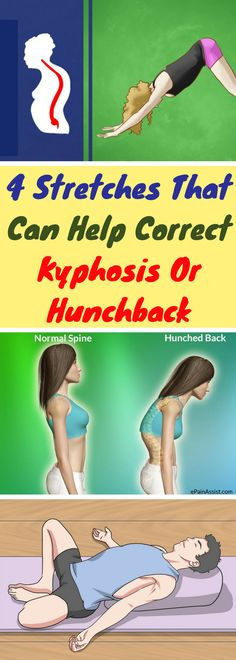 4 Stretches That Can Help Correct Kyphosis Or Hunchback Kyphosis Exercises, Scoliosis Exercises, Posture Exercises, Back Exercises, Yoga Fitness, Fitness Tips, Fitness Motivation, Health Fitness, Massage