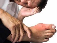 Pembengkakan pada sendi khususnya pada malam hari terjadi akibat penyakit asam urat atau rematik yang disebabkan asam urat