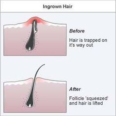 What is ingrown hair? Ingrown hair is a condition where the hair grows sideways into the skin. The condition is widespread in people who have curly or coarse hair. DIY Home Remedy For Ingrown Hair. Ingrown Hair Armpit, Infected Ingrown Hair, Ingrown Hair Serum, Ingrown Hair Remedies, Ingrown Hair Removal, Pimples Remedies, Dark Circle, Bump Hairstyles, Anti Aging