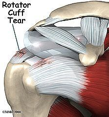 How to Workout with a Torn Rotator Cuff. Do not try to push through the pain: if you do your injury will take longer to heal. What you have to do is try it with very little weight and if it hurts BACK OFF! Do something else. It will be hard to even reach out and grab a weight with that arm so you reach out with the good arm and place it in the other hand. There are little tricks like this you learn to do so that you can still workout.