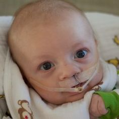The NAM device is used with children diagnosed with cleft lip to shape the nose and lips prior to surgery. Read parents' stories about their experience using the NAM.