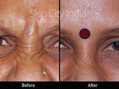 Skin City India - Botox Treatment in Pune