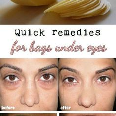 11 Quick Remedies for Puffy Eye Bags