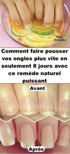 Diy Nail Soak Recipe to Grow Nails Long, Strong and Fast Nail Growth Ongles Plus Forts, Ongles Forts, Diy Nails Soak, Nail Soak, Beauty Care, Diy Beauty, Beauty Ideas, Beauty Makeup, Do It Yourself Nails