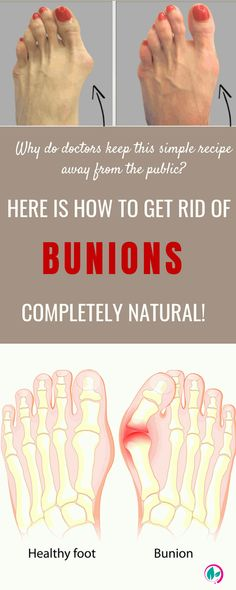 Bunions are common problem, and affects more women than men.They are really unattractive but also are pesky as finding fitting shoes can be quite an ordeal. Natural Health Tips, Natural Health Remedies, Natural Cures, Natural Oils, Herbal Remedies, Healthy Beauty, Health And Beauty, Beauty Skin, How To Treat Bunions
