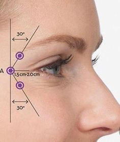 Kuvahaun tulos haulle botox injection sites diagram - Another! Facial Fillers, Botox Fillers, Dermal Fillers, Lip Fillers, Botox Injection Sites, Botox Injections, Cosmetic Treatments, Skin Treatments, Relleno Facial