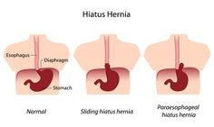 Hiatal hernia pictures: hiatus hernia comparison.    Related (pictures, images, photos): photos of...