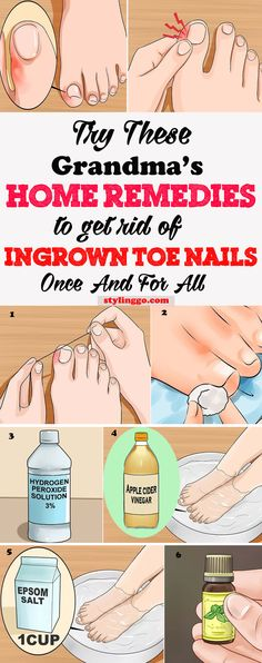 Get Rid Of An Ingrown Toenail instantly with easy home remedies...