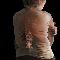 Penyembuhan Osteoporosis Dengan Melia Propolis Dan Melia Biyang 1024x1024 Penyembuhan Osteoporosis Dengan Melia Propolis Dan Melia Biyang