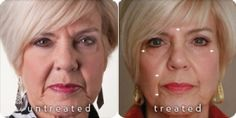 Byebye Nasolabial Folds - 90 days with Galvanic Spa Galvanic Facial, Ageloc Galvanic Spa, Nu Skin Ageloc, Nasolabial Folds, Body Spa, Before After Photo, Actrices Hollywood, Facial Care, Beauty Industry